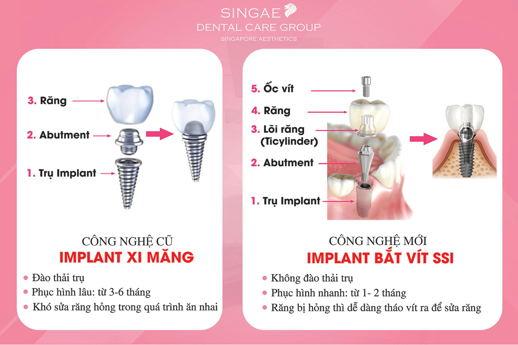 So sánh trồng răng Implant bắt vít và Implant xi măng