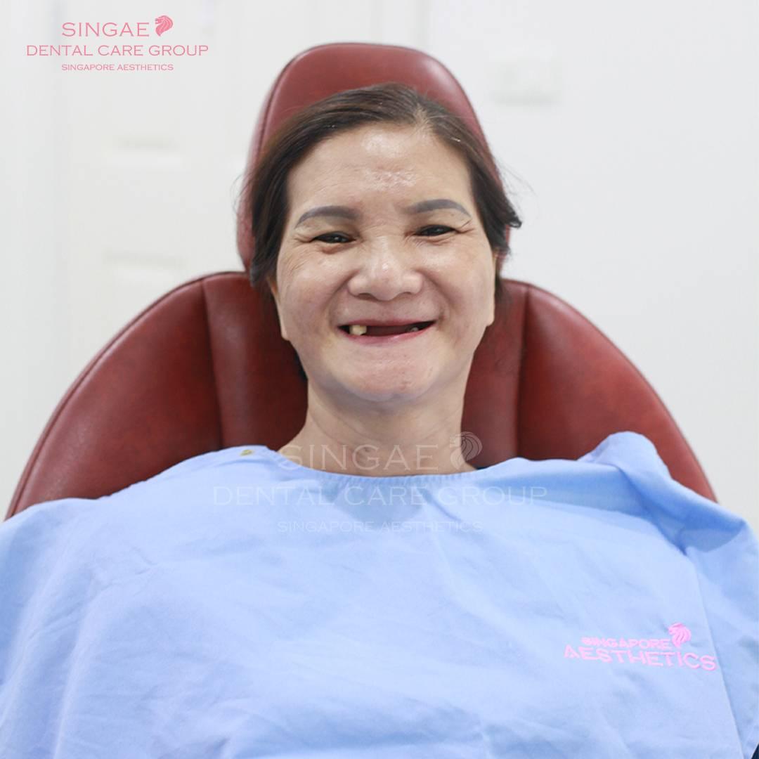 mất răng toàn hàm