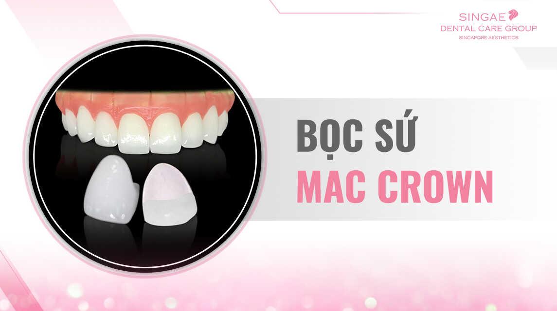 Bọc răng sứ Mac Crown
