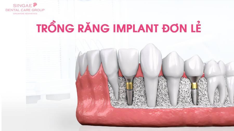 Trồng răng Implant đơn lẻ