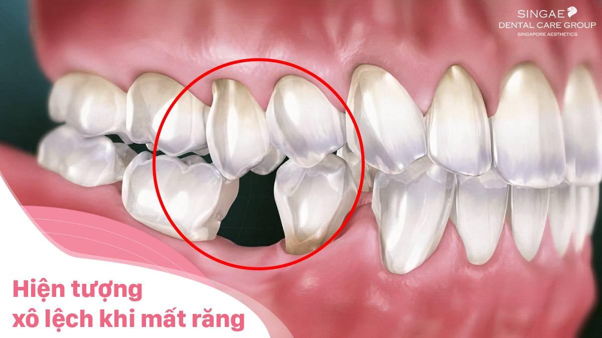 hiện tượng xô lệch khi mất 1 răng