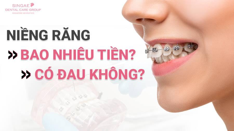 Bảng giá niềng răng như thế nào?