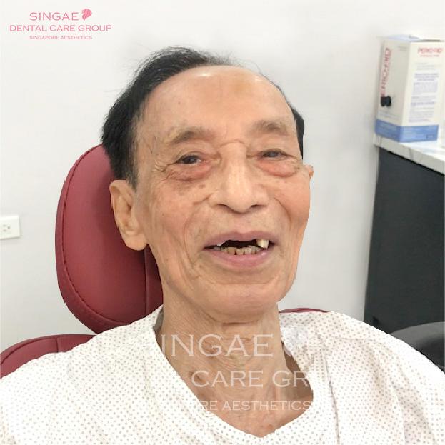 Cắm răng Implant