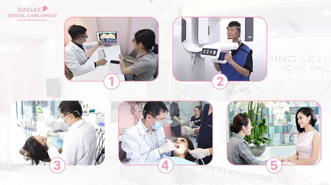 Quy trình thăm khám và điều trị nha khoa tại Nha khoa Singae