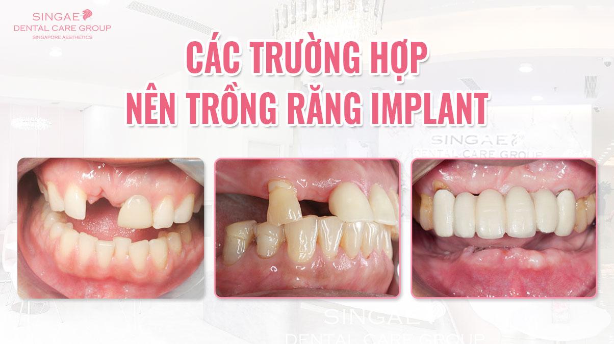 Phân loại các trường hợp mất răng có thể trồng răng Implant