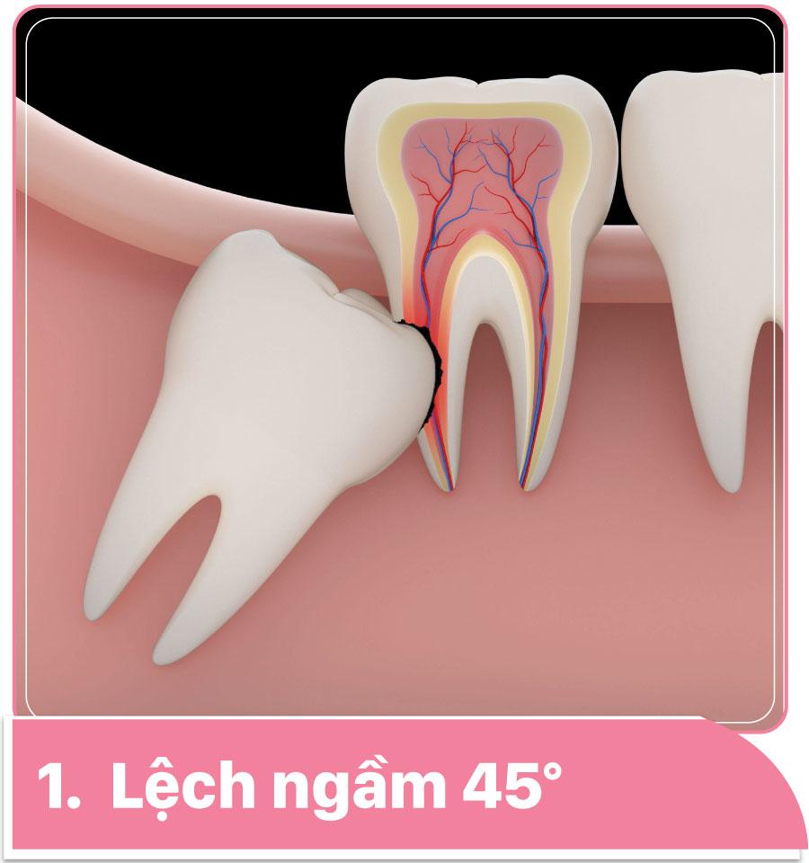 răng khôn mọc ngầm 45 độ