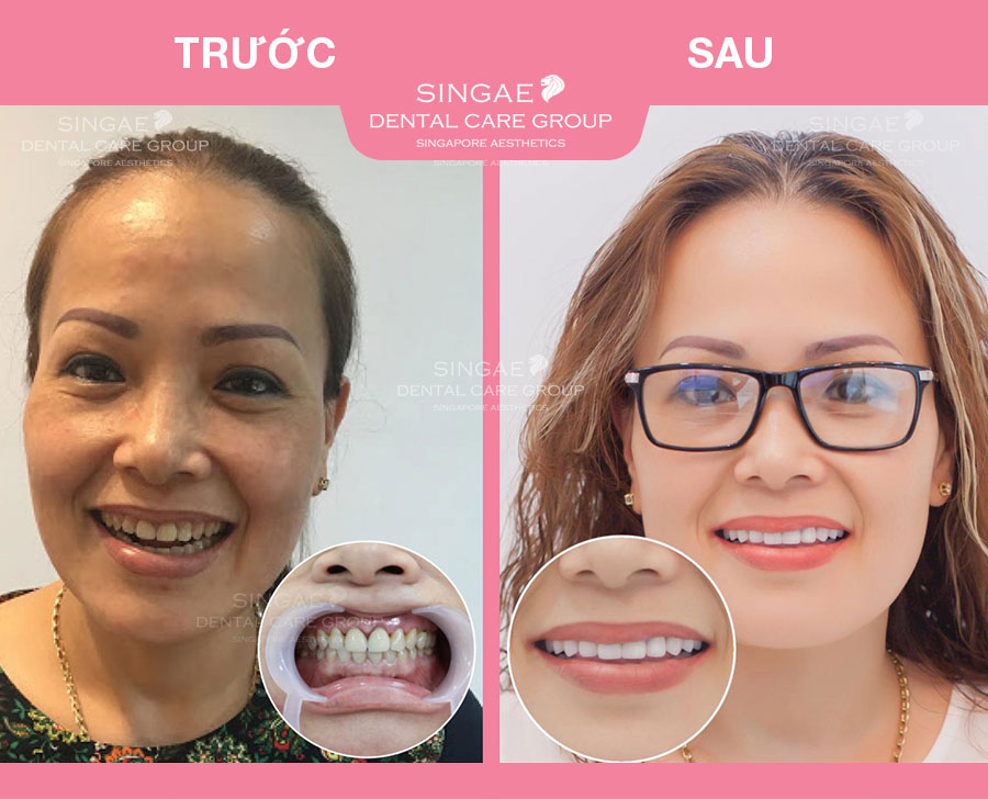 Chị Thanh Bình - 45 tuổi Dán 26 răng sứ Veneer tại Nha khoa Singae