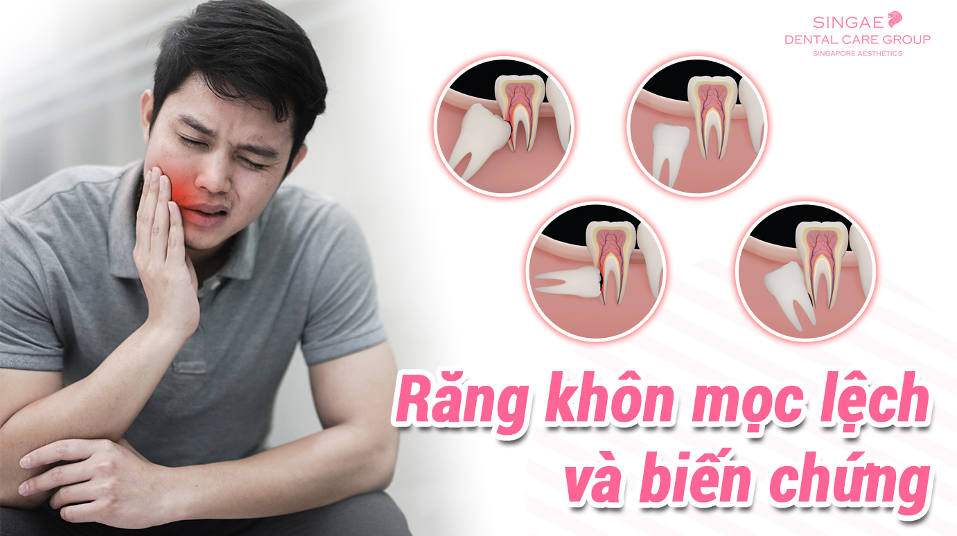 Thế nào là răng khôn mọc lệch, răng khôn mọc thẳng?