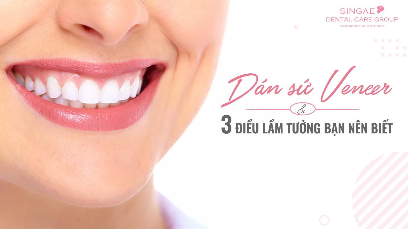 3 lầm tưởng không đáng có về dán răng sứ Veneer