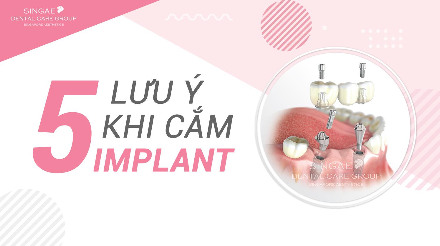 10+ Điều bạn cần biết về kỹ thuật cấy ghép Implant
