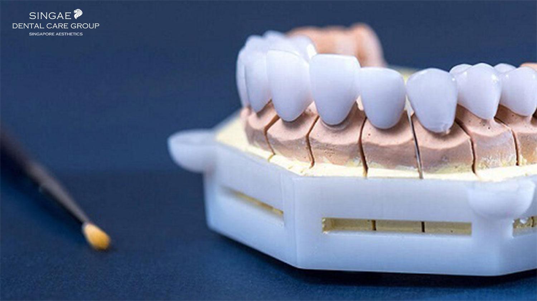 7+ Sự thật về răng sứ Titan nhất định bạn cần biết