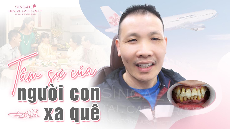Từ Séc trở về, nam Việt Kiều trồng răng Implant ăn nhai đón Tết