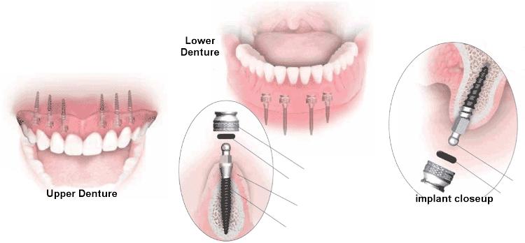 Cấu tạo răng Mini Implant