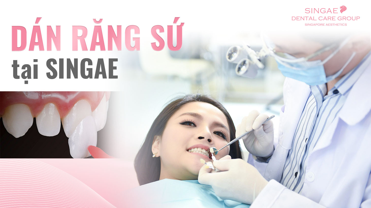 Dịch vụ dán sứ Veneer của phòng khám nha khoa Singae Dental – Sự lựa chọn đúng đắn dành cho bạn