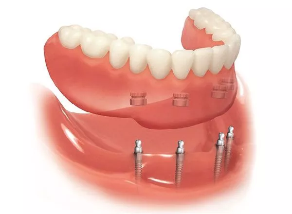 Kết nối bằng ốc vít nên Mini Implant dễ dàng tháo lắp để vệ sinh khi cần thiết