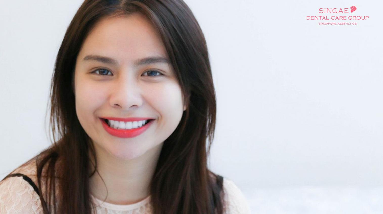 Niềng răng móm – Phương pháp điều trị hiệu quả cho khách hàng