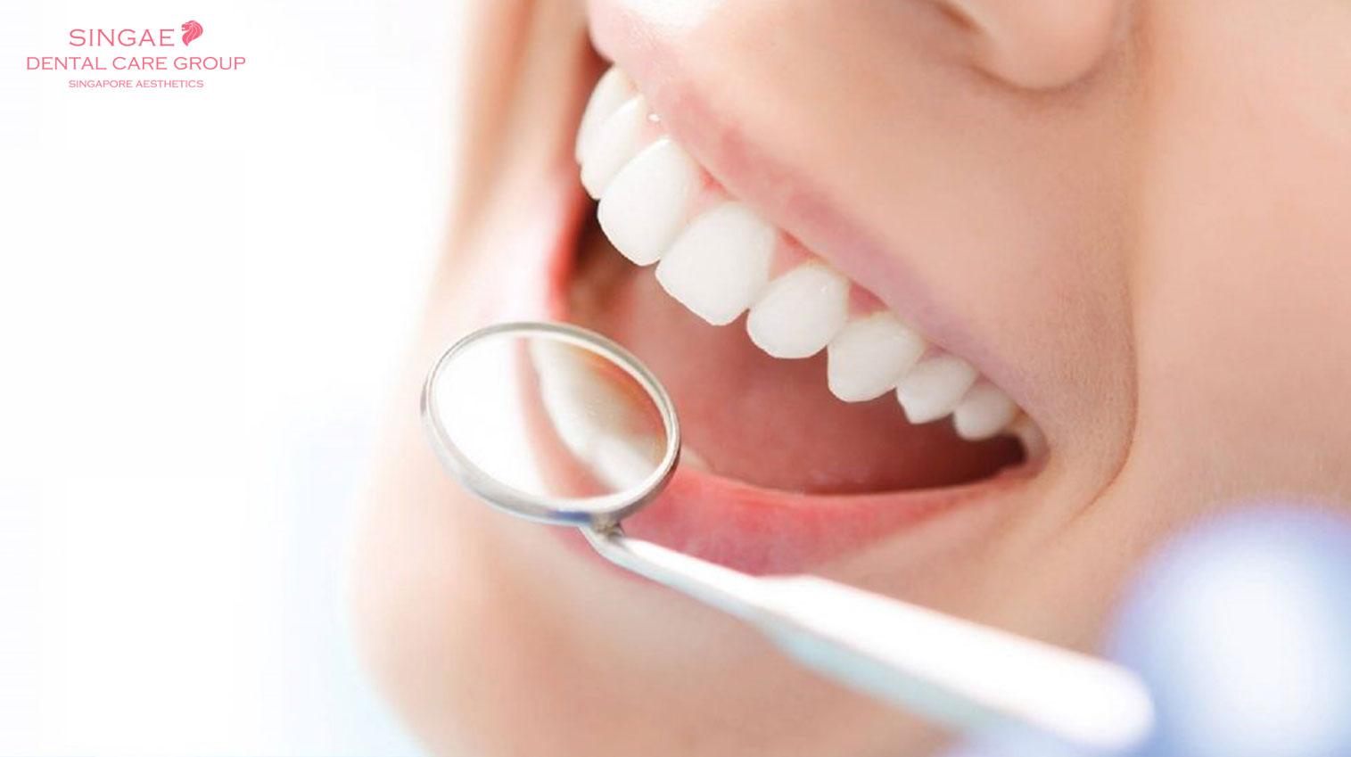 Bọc răng sứ có đau không? Và 5+ cách giảm đau tại nhà