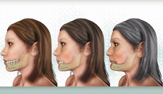 Mô tả quá trình tiêu xương do mất răng