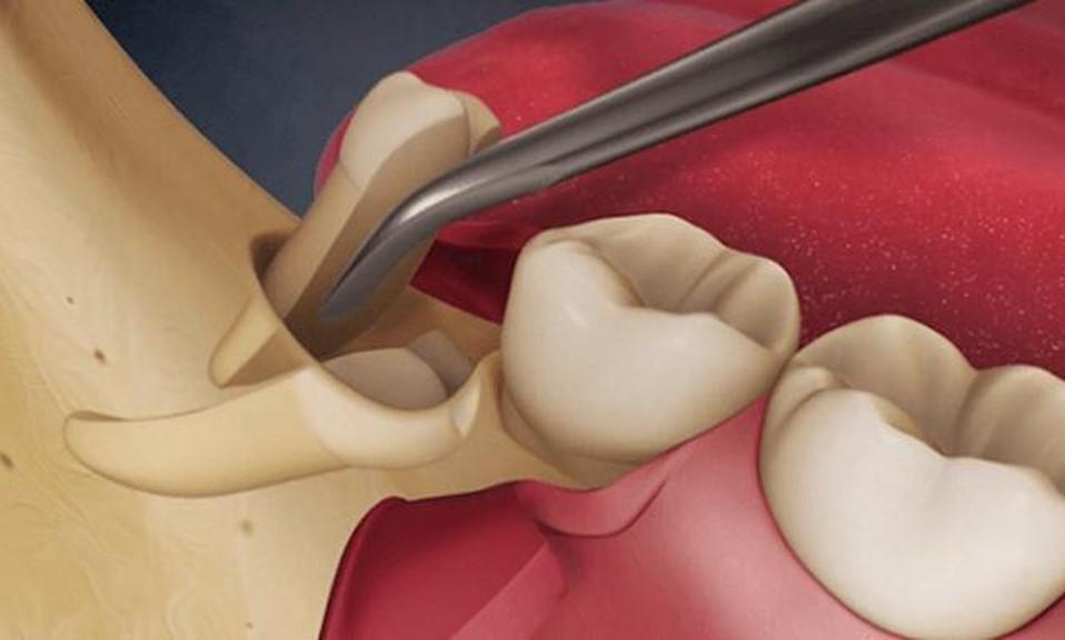Chia cắt thân răng và nhổ răng