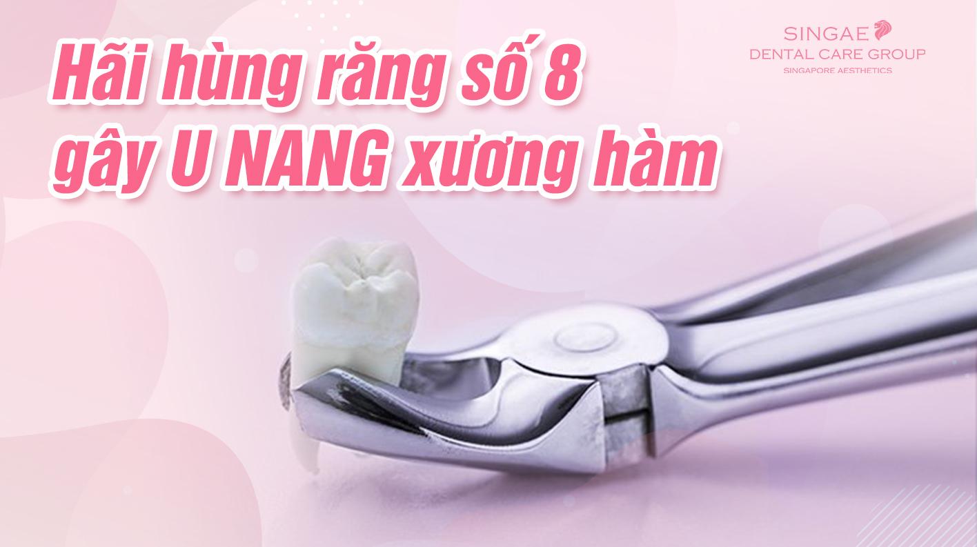Biến chứng của răng số 8 nếu không xử lý kịp thời