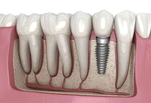 Răng Implant có cấu tạo như một chiếc răng thật, bảo vệ các răng bên cạnh