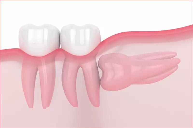 Răng khôn mọc ngang đâm thẳng vào chân răng số 7