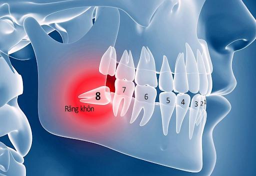 Răng khôn mọc ngang phá huỷ răng số 7
