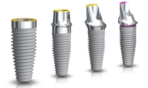 Trụ Implant Straumann được các bác sĩ khuyên nên sử dụng