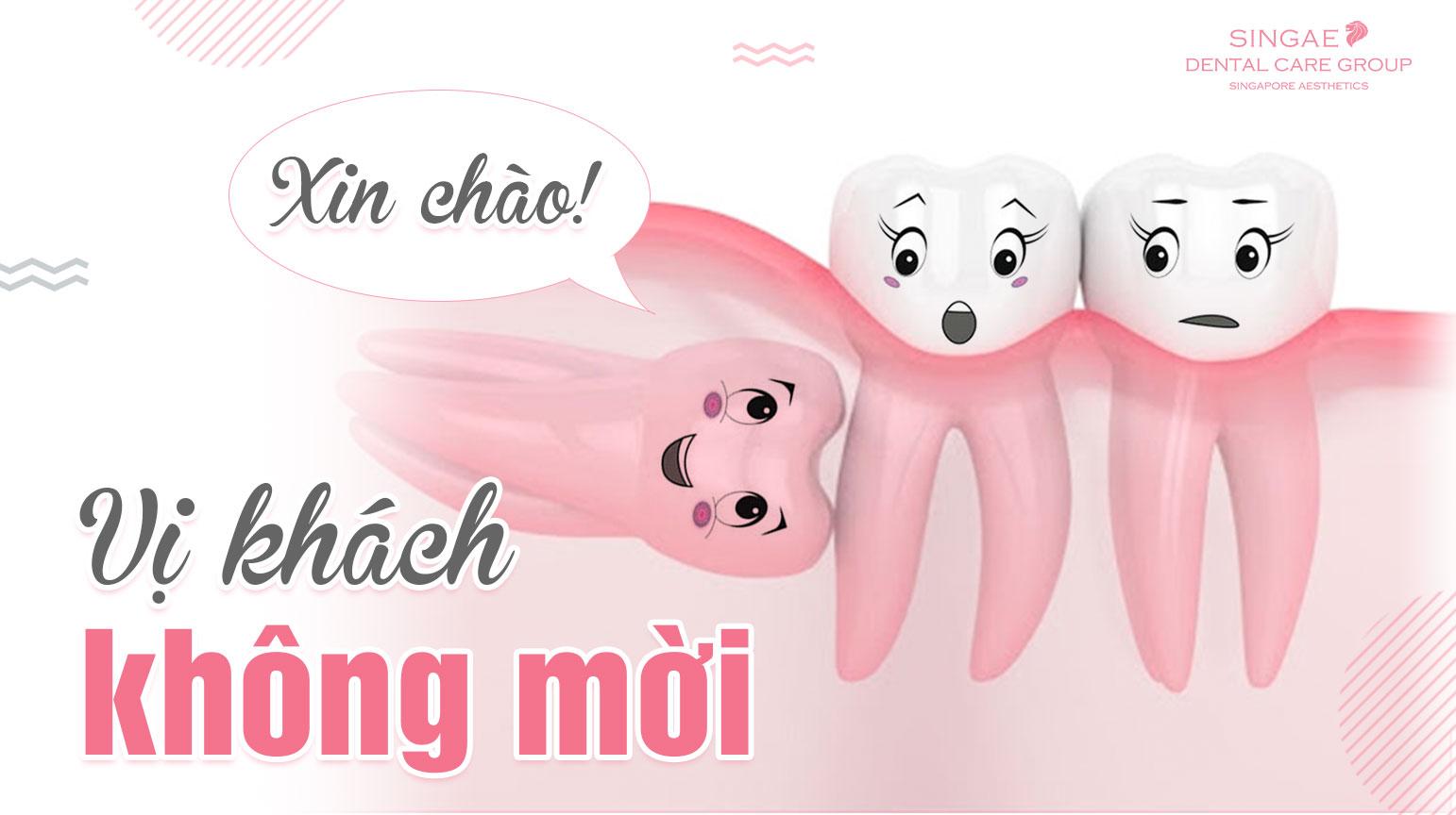 Răng khôn mọc ngang – sát thủ âm thầm phá hoại hàm răng
