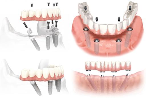 Mô hình miêu tả quá trình cắm Implant