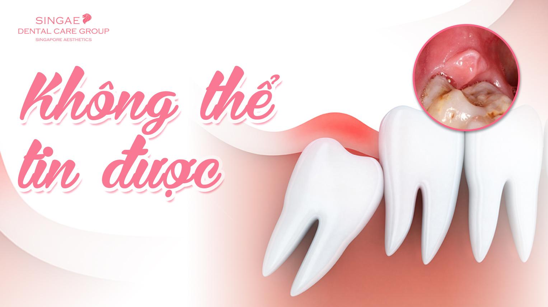 Lợi trùm răng khôn Có nguy hiểm không? Cách chữa trị dứt điểm?