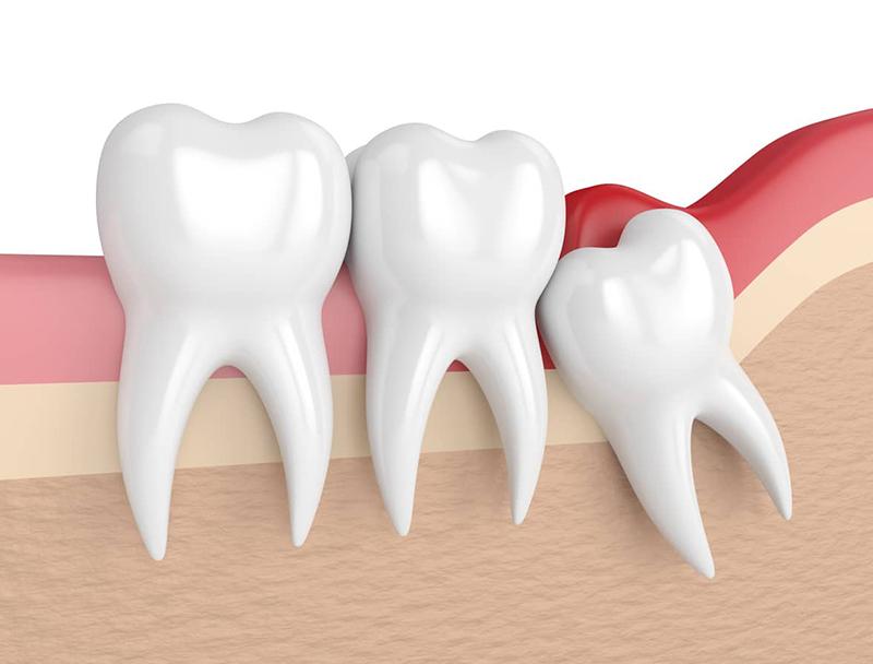 Răng khôn mọc ngầm khiến sưng lợi và ảnh hưởng đến răng số 7