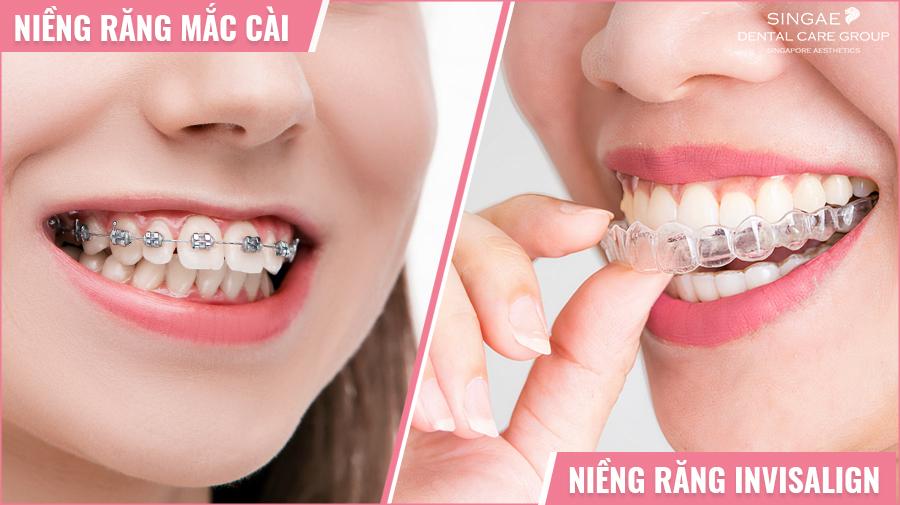 So sánh điểm khác nhau của niềng răng mắc cài và niềng răng trong suốt Invisalign