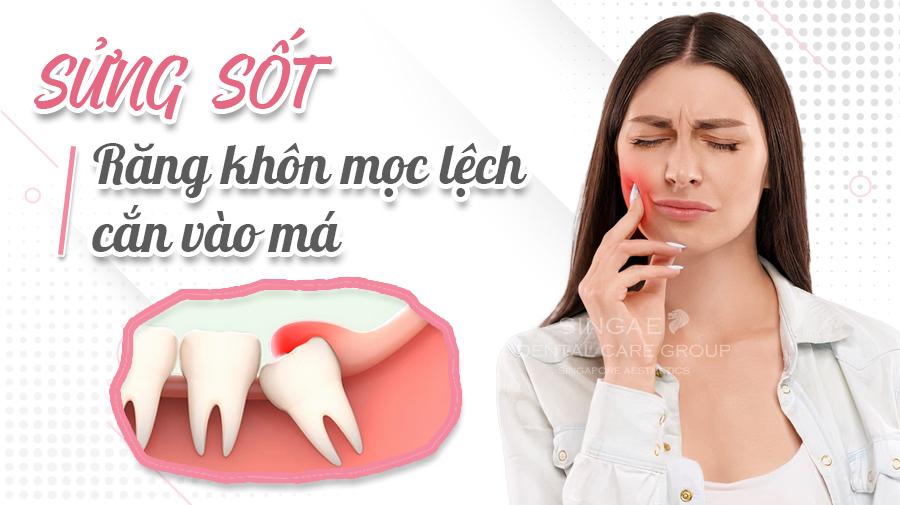 Mọc răng khôn bị sưng má có cần nhổ không?