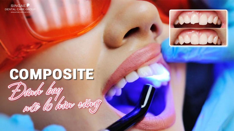 Chuyên gia tiết lộ thông tin đáng tin cậy về hàn răng Composite