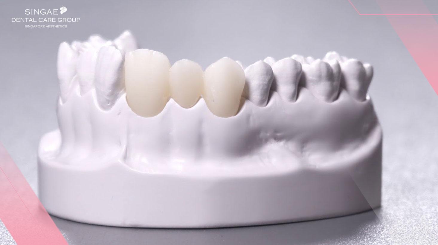 [Chia sẻ ] 6+ Điều bạn cần biết về răng sứ Cercon