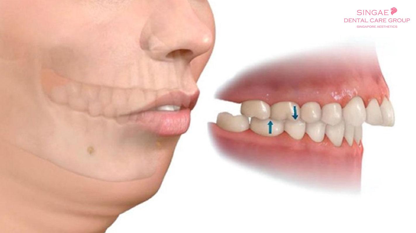 """Đằng sau 1 người niềng răng, là một lần tự hỏi """"Niềng răng hô mất bao lâu?"""""""