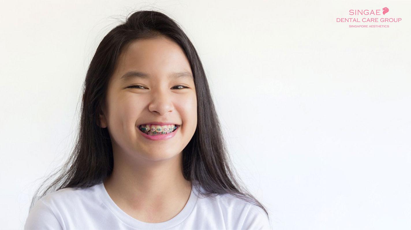 Bật mí thời điểm vàng niềng răng cho trẻ
