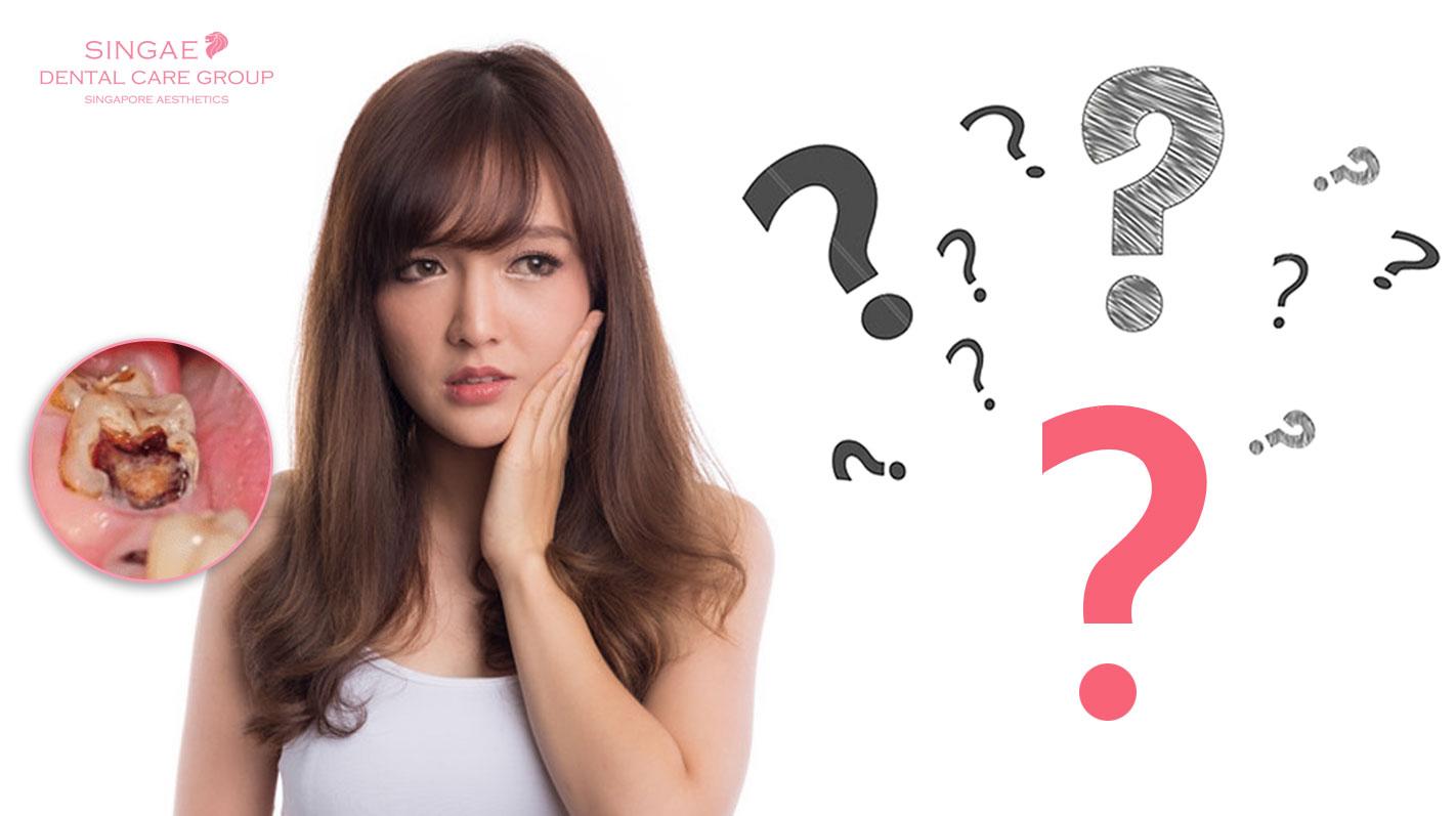 Hàn răng là gì và 10 vạn câu hỏi vì sao