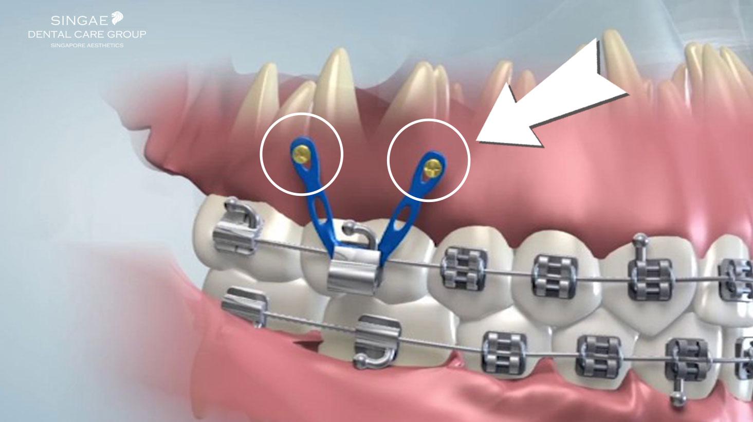 Bắt vít niềng răng để làm gì? Sợ hãi khi biết sự thật về vít niềng răng