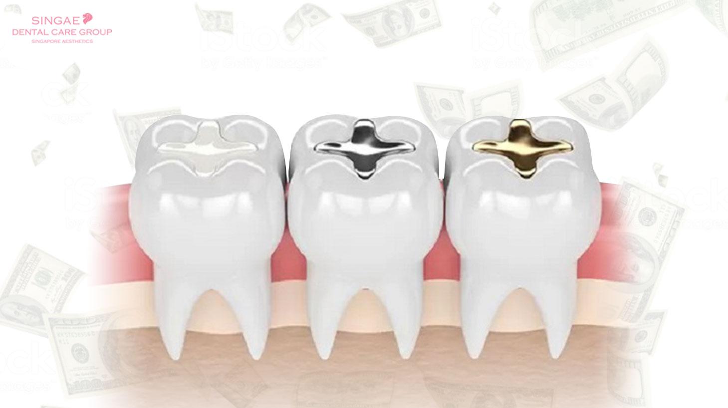 Hàn răng bao nhiêu tiền? Tiết lộ chi phí hàn răng bất ngờ