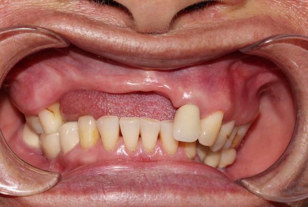 Bệnh nhân tiêu xương do mất răng