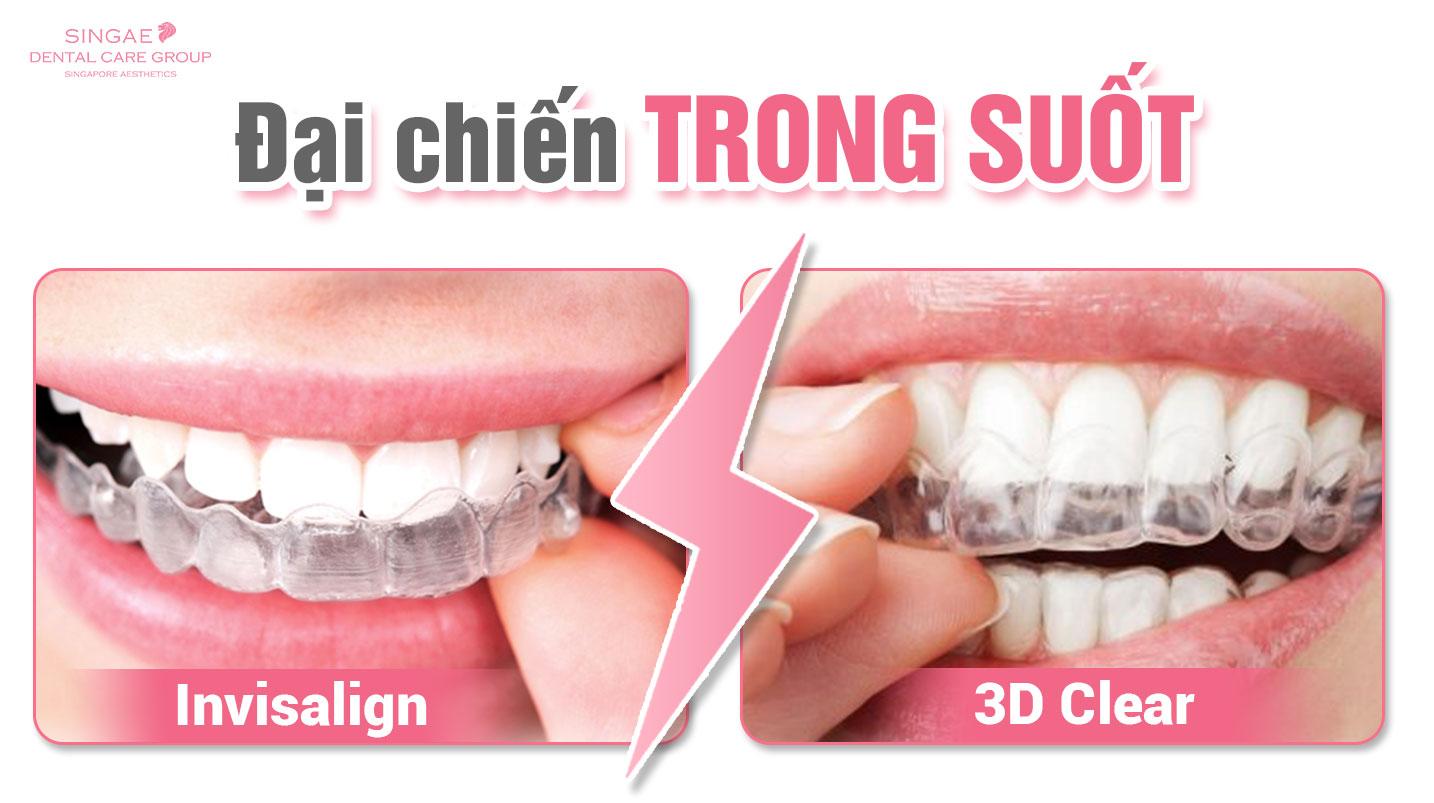 Niềng răng 3D Clear là gì? Nó có phải là niềng răng trong suốt Invisalign không?