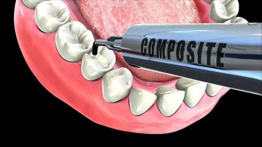 Hàn răng bằng vật liệu Composite 1