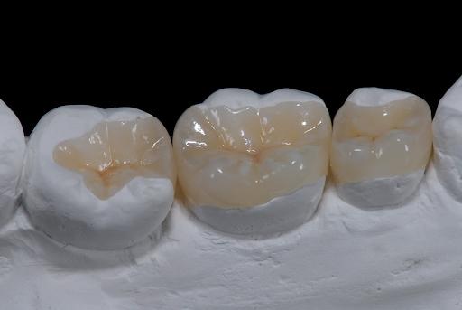 Hàn răng bằng vật liệu sứ