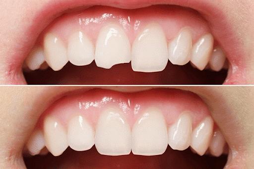 Hàn răng mẻ