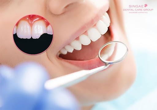 Hàn răng mẻ 1