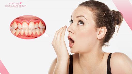 Hôi miệng vì bị viêm lợi do thức ăn mắc kẹt tại các ổ răng sâu