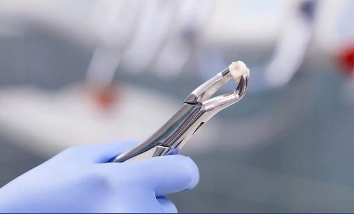 Nhổ răng khôn giúp giảm bớt cơn đau và bảo vệ các răng còn lại