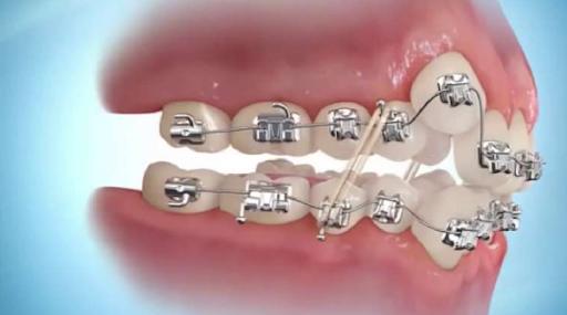 Niềng răng khểnh và 1001 câu hỏi vì sao về phương pháp này